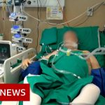 Coronavirus: What happens in an intensive care unit? – BBC News